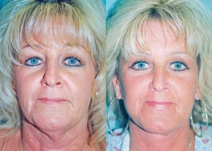 50 best Non-Surgical Facelifts Elements Using Yoga Face ...