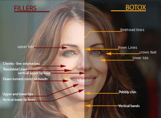 Botox vs. fillers…Do you know the difference?