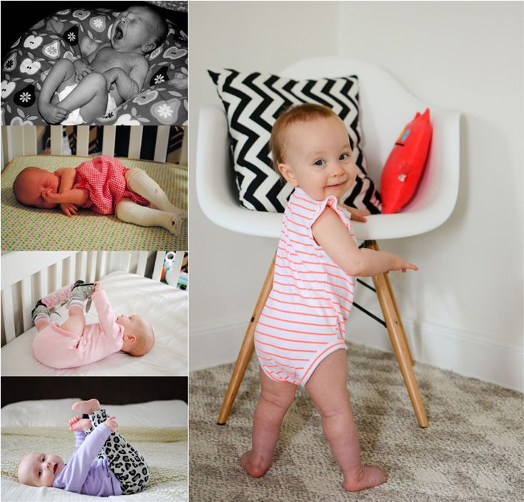 Pin On Baby Ideas For Babies With Clubbed Feet