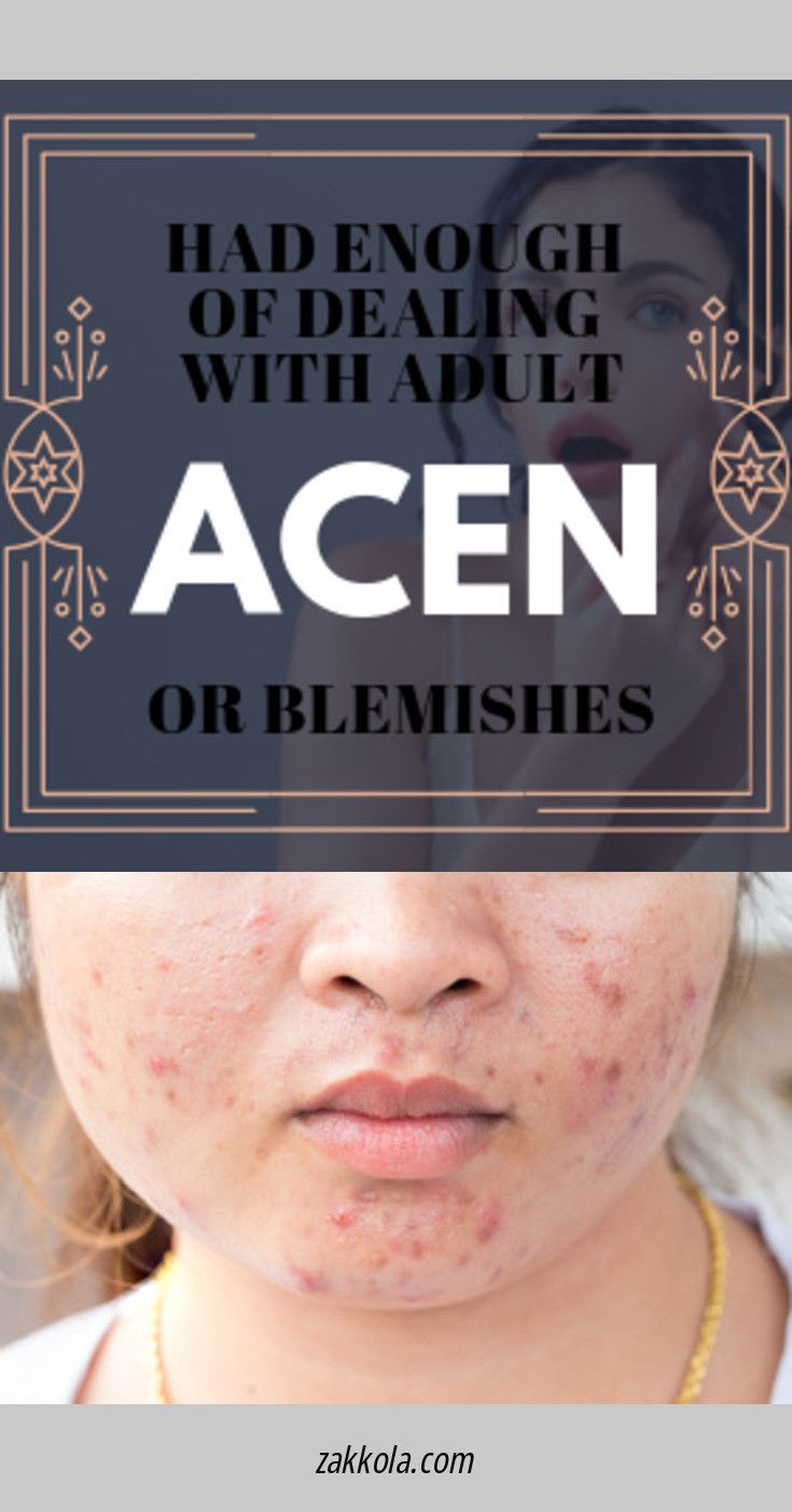 Head to the webpage to read more about acne. Foll…