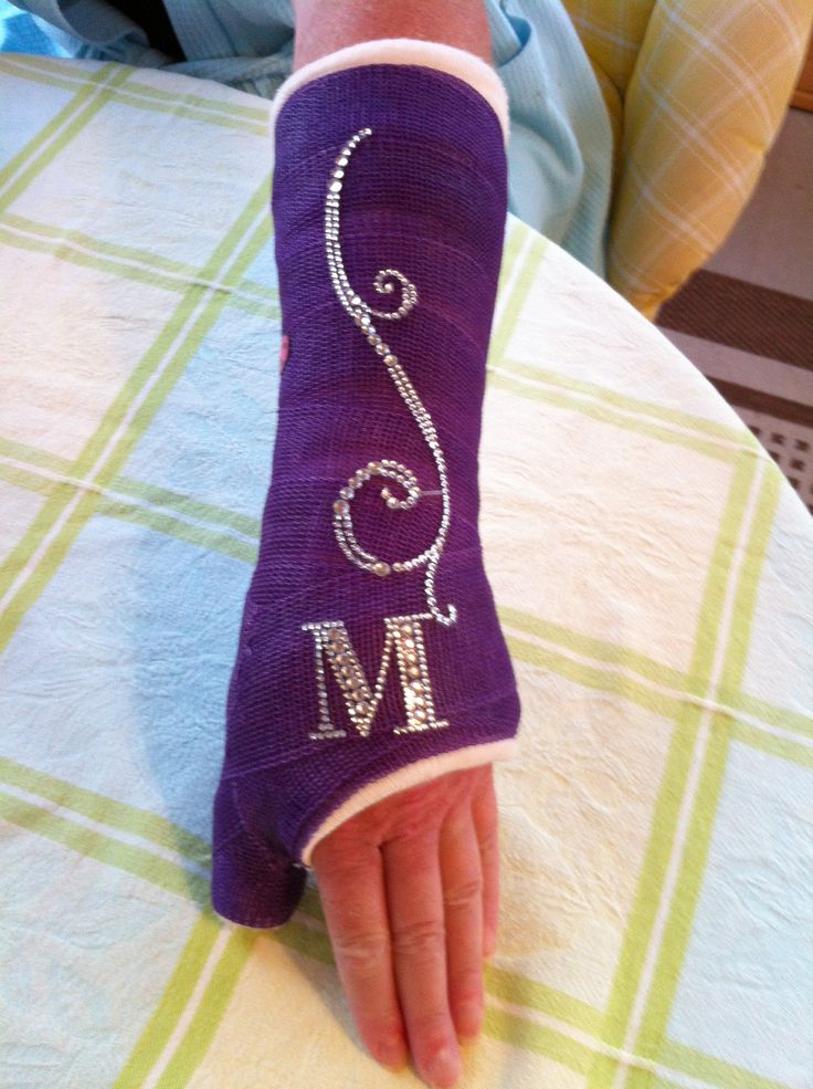 Jazz up your cast with some bling!