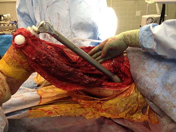 Femur replacement due to bone cancer - The Weird Picture Archive