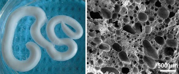 French researchers have developed a self-setting injectable macroporous foam for repairing bone and assisting its growth. It could help regenerate bone faster than other materials while offering a quick and minimally invasive way for surgeons to perform bone repair procedures, and possibly treat osteoporosis.