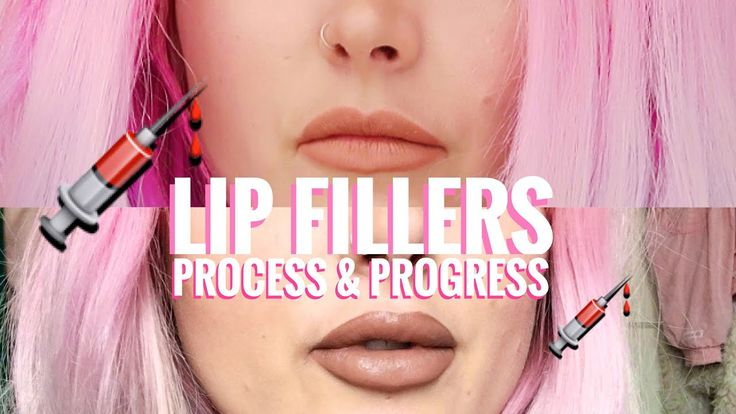 TEOSYAL RHA 2 LIP FILLERS PROCESS & PROGRESS  I saw Dr Tara again from @Enhance_by_tara who used Teosyal RHA 2 to do my lip fillers. I had 1ml  and used a different product to what I used previous... http://mermaidgossip.com/teosyal-rha-2-lip-fillers-process-progress/