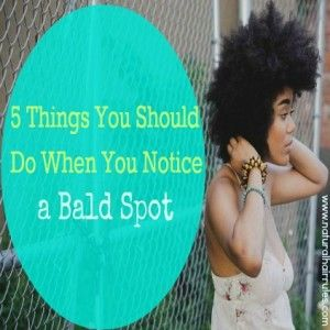 5 Things You Should Do If You Notice A Bald Spot - Natural Hair Rules!!!