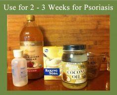 Natural Psoriasis Shampoo | Scalp Psoriasis Home Remedies