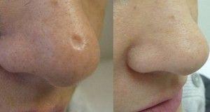 Débarrassez-vous des cicatrices sur la peau en utilisant ces remèdes naturels