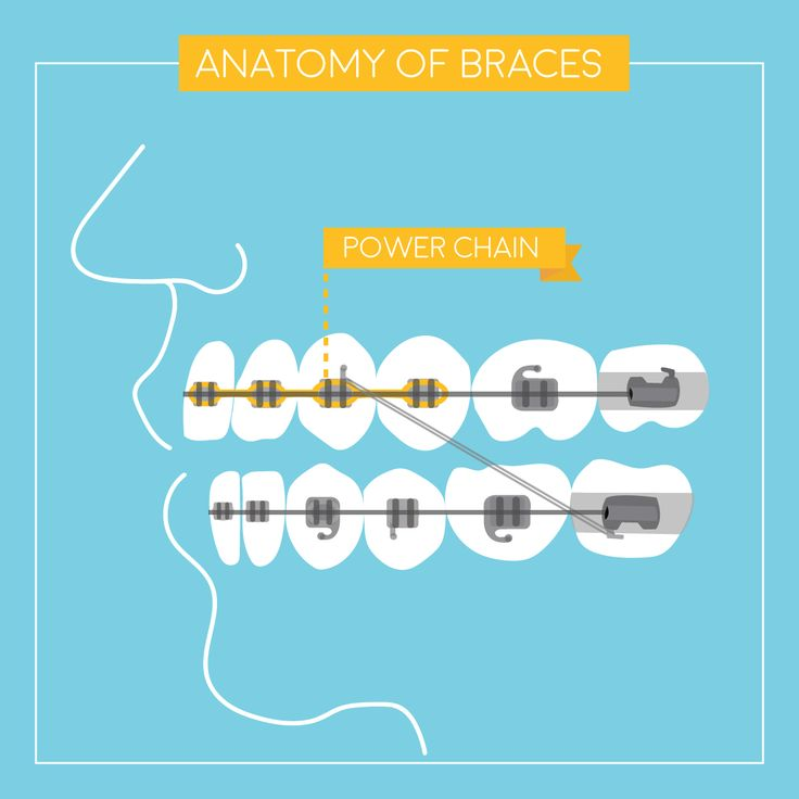 Braces piece by piece this is the power chain these