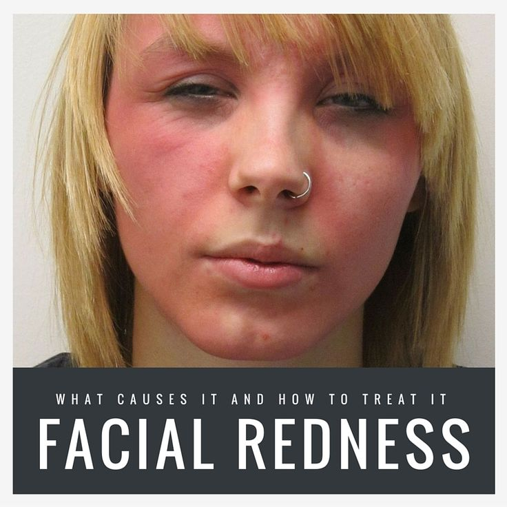 Facial redness home remedy