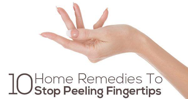 Top 10 Home Remedies To Stop Peeling Fingertips