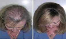 Bu Yağ İle Saçlarınız Gür ve Uzun Olacak Ayrıca Kaşları Çoğaltmak İ…