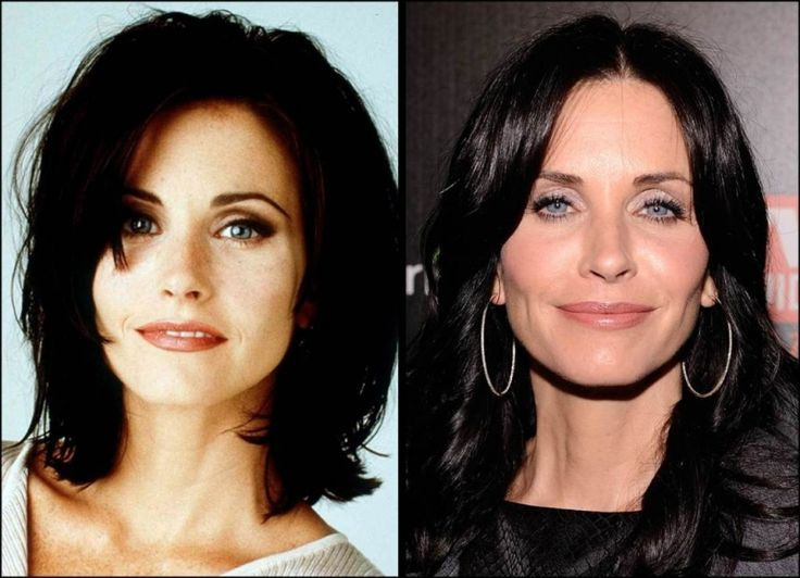 Courtney Cox Plastic Surgery Gone Wrong courtney cox plastic surgery before and aftercourtney cox plastic