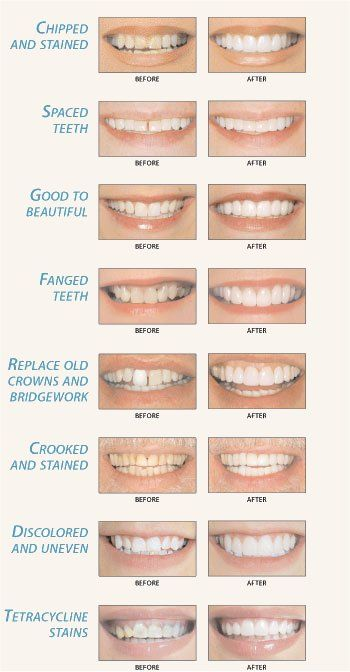 Tooth Bonding can help correct many different smile problems, such as stubborn stains, gaps between teeth, or chipped or uneventeeth.