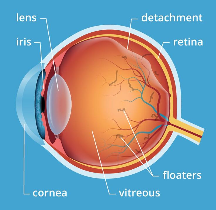Eye floaters and spots explained: causes, treatments and when to consider them an emergency