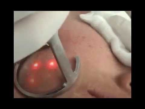 Laser skin resurfacing for acne scars removal treatment with fractional CO2 laser -  CLICK HERE for the Acne No More program #acne #acnetreatment #acnetips #acnecare Laser skin rejuvenation with fractional co2 laser. The laser skin resurfacing is the most
