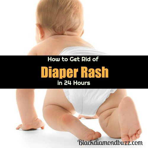 Do you have a baby suffering from diaper rash? Find out here how you can get rid of severe diaper rash permanently within 24 hours at home with little or no side effects.These effective home remedies for diaper rash will give your baby fast relief from diaper rash symptoms.Try It