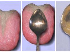 Jednoduchý lžičkový test: Zjistěte onemocnění vnitřních orgánů do 60 vteřin