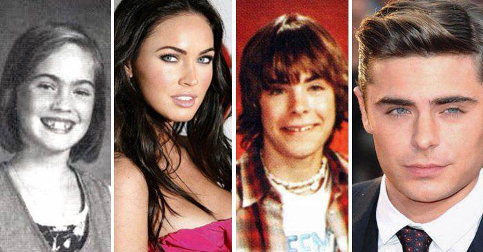 Estos 30 famosos no siempre fueron guapos y aquí tenemos las pruebas. Estos Famosos eran realmente feos y el tiempo les dio una segunda oportunidad en la vida.