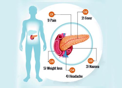 Trzustka stanowi nieodzowny organ naszego ciała. Znając objawy złego funkcjonowania trzustki, możesz zapobiec pojawieniu się poważniejszych problemów.