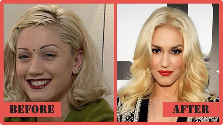 Gwen Stefani Plastic Surgery What Happened To The