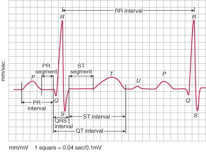 Atrial abnormalities are most easily seen in the inferior leads (II, III and aVF) and lead V1, as the P waves are most prominent in these leads.