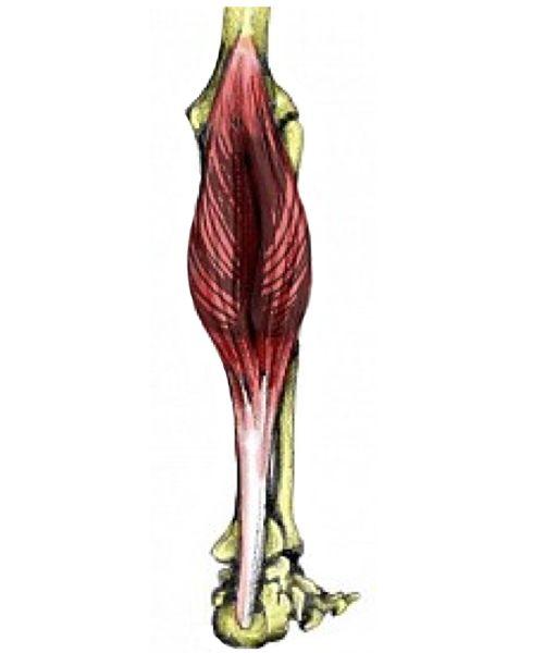 Gastrocnemius muscle calf strain