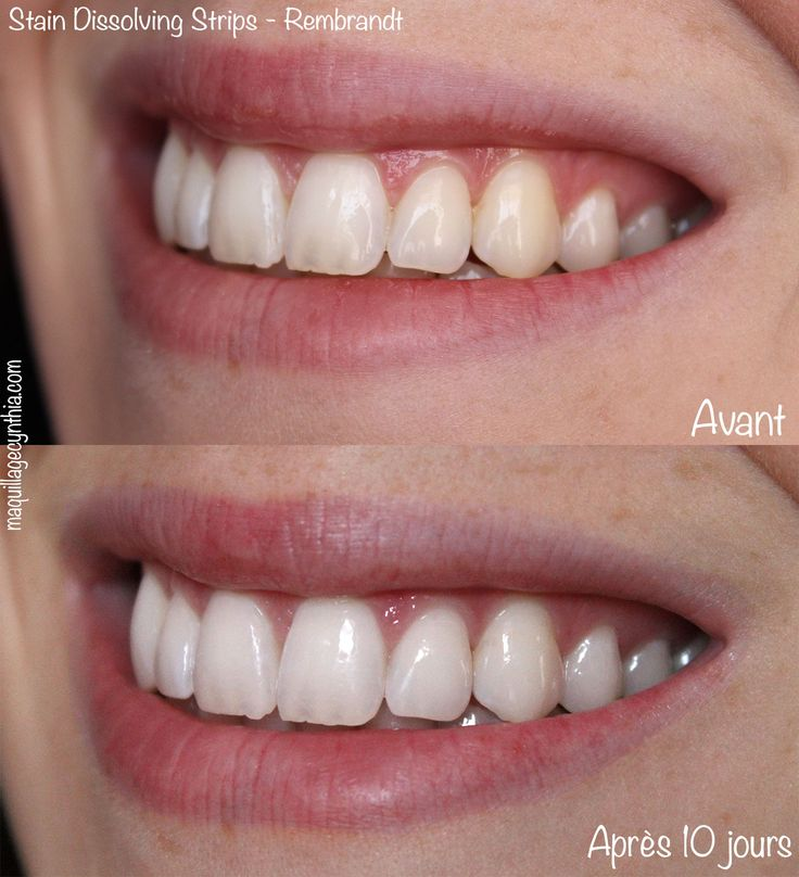 5 fa ons de blanchir ses dents sant pinterest stains walmart and teeth. Black Bedroom Furniture Sets. Home Design Ideas