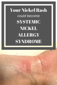 your nickel rash could become systemic nickel allergy syndrome