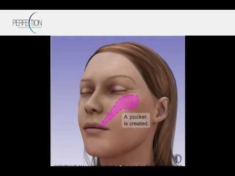 Face Implants   Cheek malar