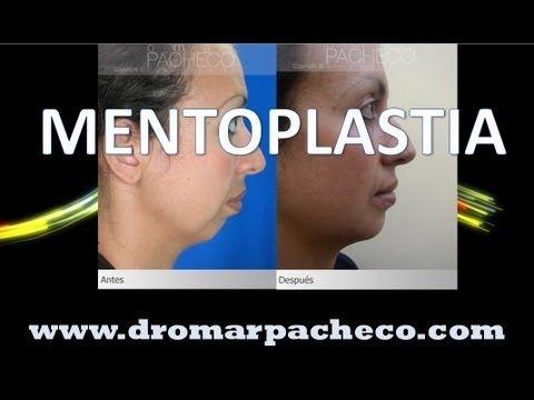 Mentoplastia Cirugia para reducir o aumentar la barbilla #cirugiaplastica #bogota