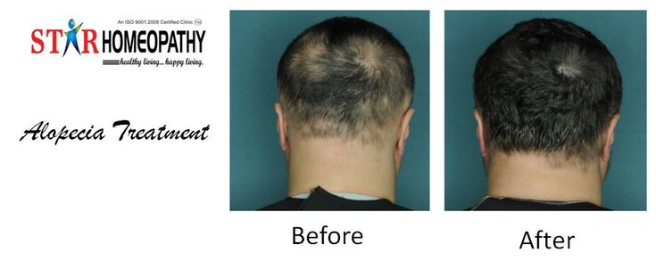 Star Homeopathy works wonderfully for all the cases of alopecia areata. Homeo medicines treatment can help the hair re-grow more quickly. Commonly indicated Homoeopathic medicines for alopecia are  Acid Flour , Sulphur, Natrum Muriaticum, Phosphorus etc.  For more info visit @https://goo.gl/q8txsB     OR     Call us : 9959911099. #homeopathy #homeopathyhospitalsinhyderabad #alopecia #homeopathytreatmentforalopecia #homeopathyclinicsforalopecia #homeopathymedicine…