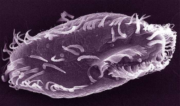 You Have 46 Chromosomes. This Pond Creature Has 15,600 (Oxytricha trifallax; click through for story).