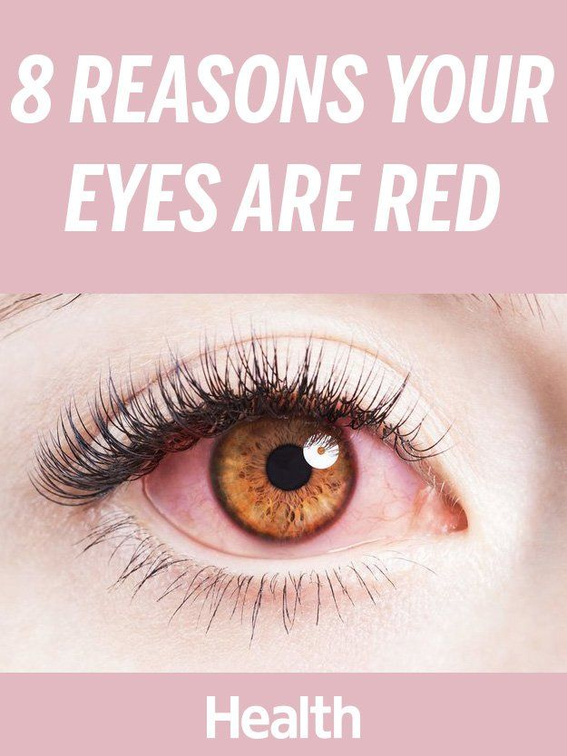 Bright red spider-like veins, red patches, overall redness—learn all the causes of bloodshot eyes, so you can get a sense of what's behind the redness in yours and whether you need to see an eye doctor pronto.