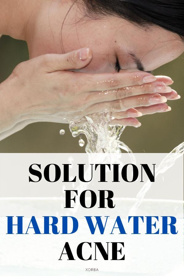 Does Hard Water Cause Acne The Truth About Tap Water Acne Skin Care Acne Natural Oils For Skin