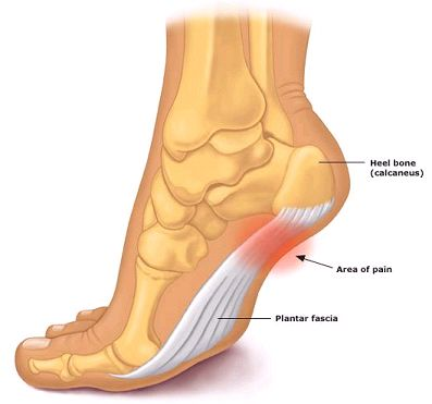 How to Fix Plantarfasciitis in 6 Visits or Less