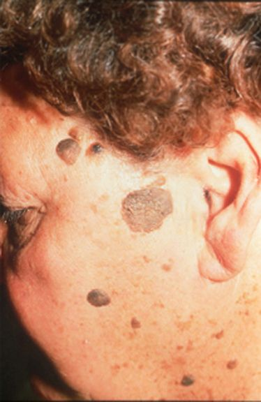 Seborrheic Keratosis - removal and treatment. The key is to physically buff your skin with an exfoliating product, and to use strong alpha hydroxy acid (AHA) products to help soften and sometimes entirely loosen these crusty growths.