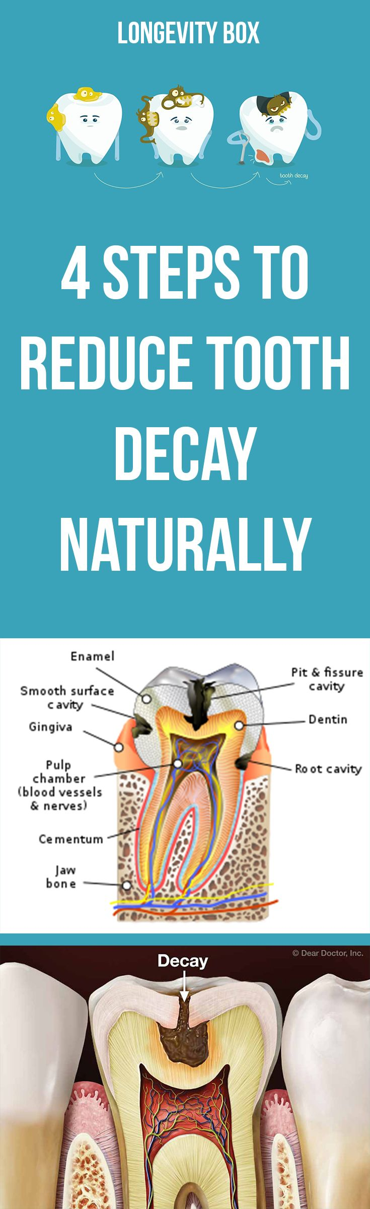 4 steps to reduce tooth decay naturally