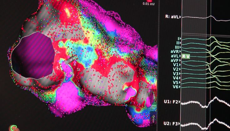Guidelines updated for atrial fibrillation ablation at HRS 2017. Boston Scientific's Rhythmia mapping system