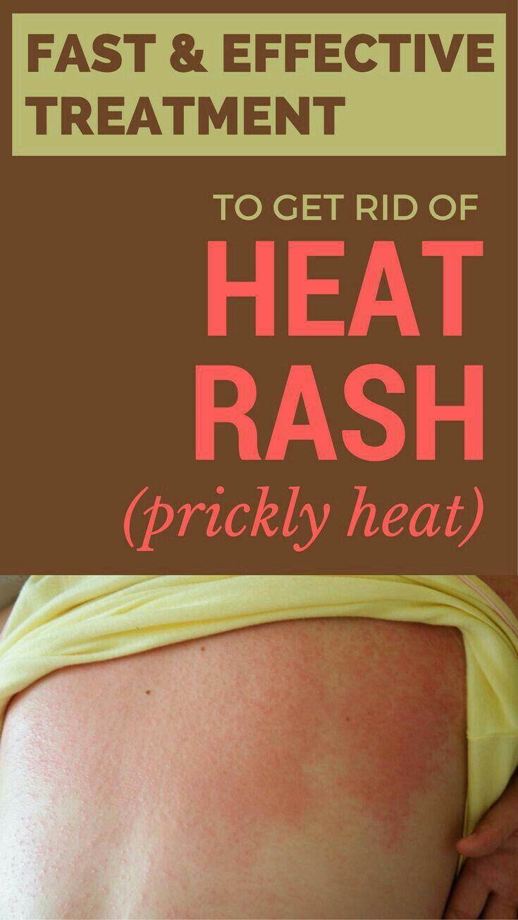 b182fe832cb49140576e39f21914b4e3 - How To Get A Heat Rash To Go Away Fast