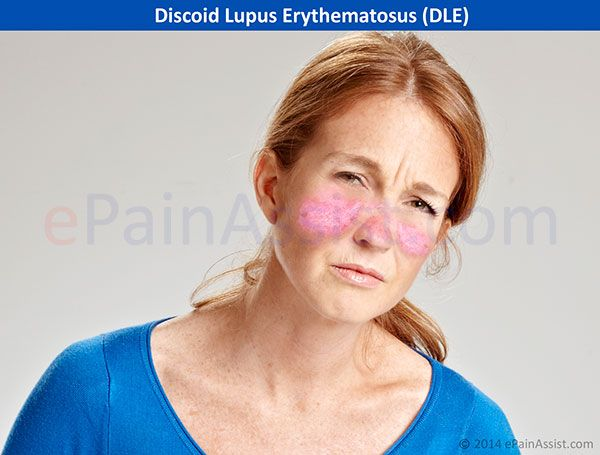 Discoid Lupus Erythematosus Read: http://www.epainassist.com/autoimmune/discoid-lupus-erythematosus-dle