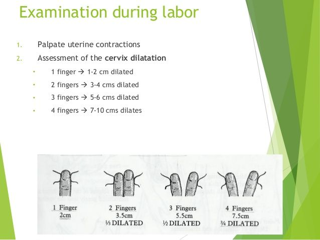 Top 10 Punto Medio Noticias | Cervix Dilation Signs Of Labor