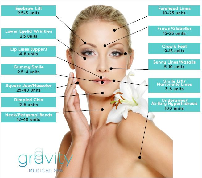 Botox© | Cosmetic | Wrinkle Removal | Frown Lines ...