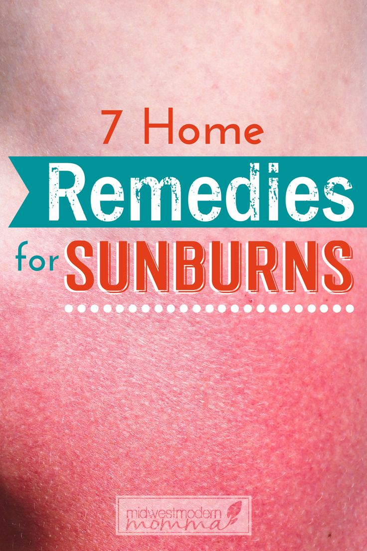 Outdoors in the warm sun is a place where many people want to be in the summer. Even the most protected bodies may suffer from sunburn when outside too long. Fortunately, there are several ways to relieve the discomfort, itch, and pain of sunburns. Check out these ways to treat home remedies for sunburn!