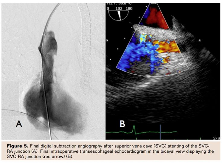 Endovascular Stenting of the Superior Vena Cava-Right Atrial Junction in Combination With Laser Lead Extraction for Iatrogenic Superior Vena Cava Syndrome | Vascular Disease Management Volume 11 Issue 6- June 2014