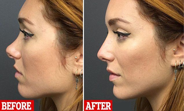 Joanna Della-Ragione, 27, from London, visited Beverly Hills cosmetic surgeon Simon Ourian in LA to correct her hated 'curved' nose with just a few jabs  - and she was wowed by the results.