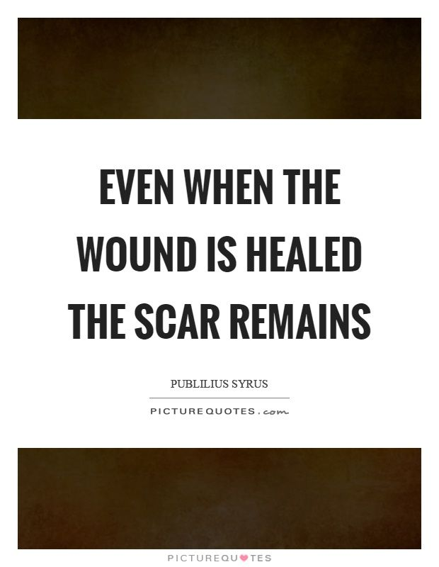 Image result for wound and scar quotes