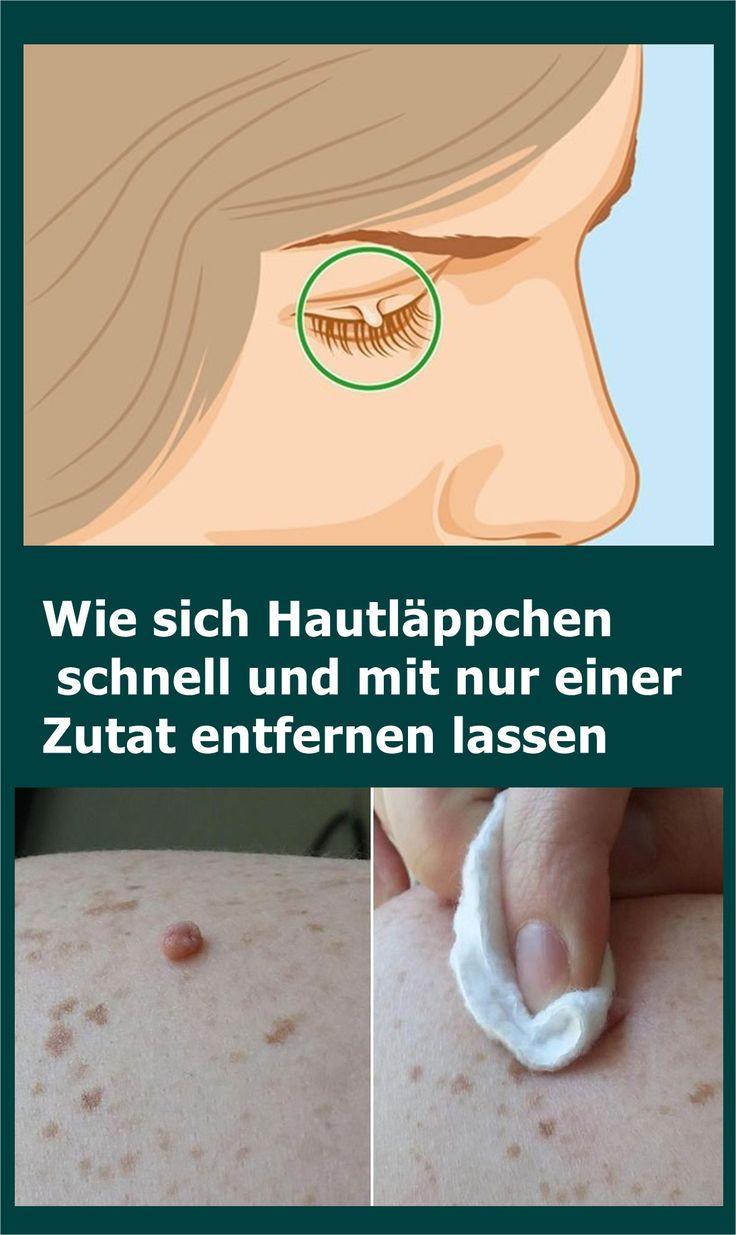 Wie sich Hautläppchen schnell und mit nur einer Zutat entfernen lassen | isfura…