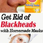 Get Rid of Blackheads with Homemade Masks
