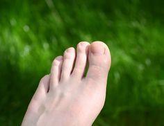 Olivenöl gegen Fußnagelpilz