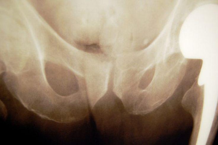 Signos y síntomas de rechazo a un reemplazo de cadera de metal   Muy Fitness